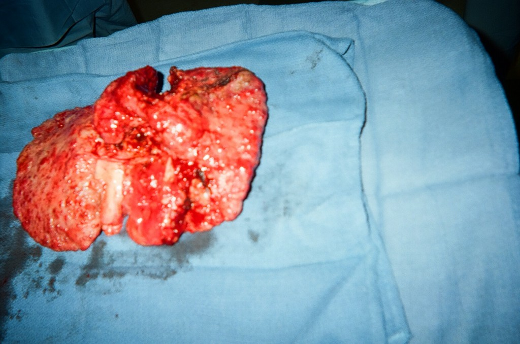 12_Diseased_Liver_removed_4